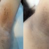 Underarm skin tag removal before and after procedure image on the same day.