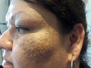 Blackheads and Whiteheads are treatable